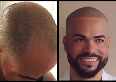 Scalp Micropigmentation Scottsdale AZ