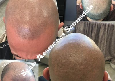 Scalp Micropigmentation for Men