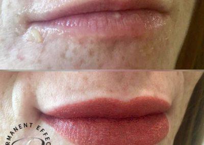 Permanent Lips Scottsdale AZ