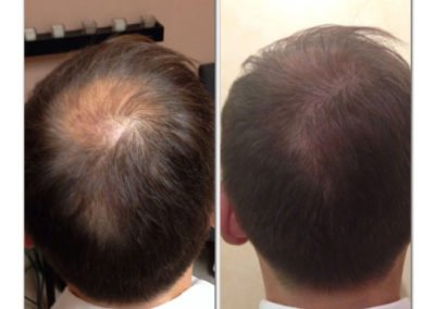 Density work with Scalp Micropigmentation