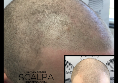 Scalp Aesthetics Scottsdale AZ