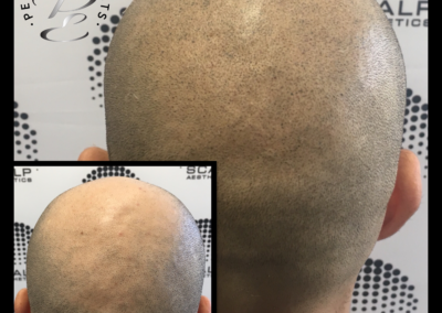 Scalp Micropigmention Arizona back